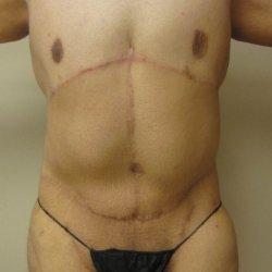 Manhattan abdominoplasty after 15